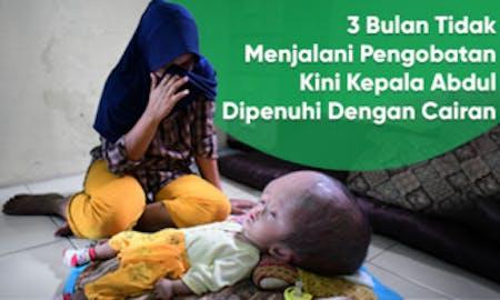 Cover Kepala Abdul Semakin Membesar, Abdul Butuh BANTUAN